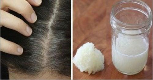 Soğan ve Bal Karışımıyla Saç Dökülmesini Önleyin