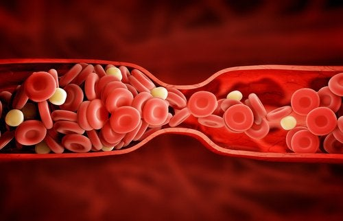 Kötü Kolesterol için Yepyeni ve Harika Bir Tedavi