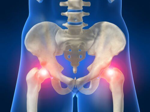 osteoartrit kalça röntgeni