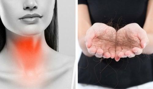 Tiroide Bağlı Saç Kaybını Önlemek İçin Yapılabilecek 8 Şey