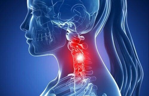 Servikal Spondilozun Belirtileri ve Doğal Tedavileri