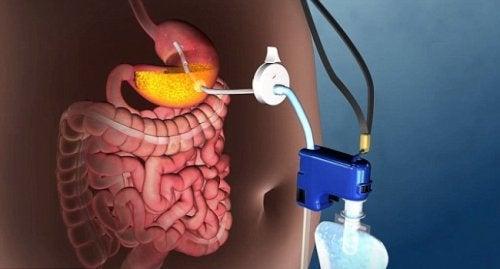 Obezitede Ameliyatsız Tedavi İmkanı Sunan Yeni Bir Teknik