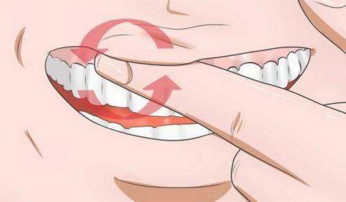 Diş Eti Şişmesi için 8 Tedavi Yöntemi