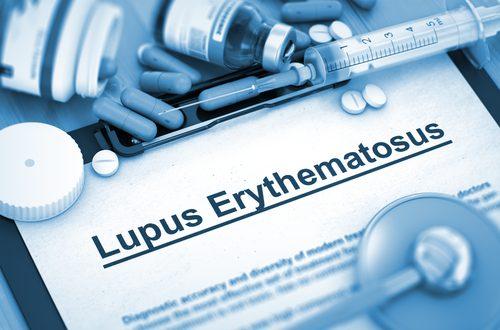 Lupus Eritematosus