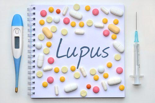 lupus tanısı