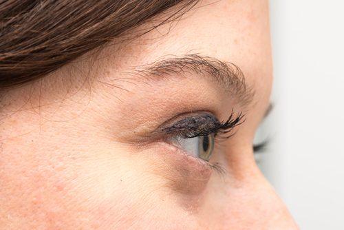 Neden Göz Altı Torbalarınız Var ve Onları Doğal Yoldan Nasıl Tedavi Edebilirsiniz