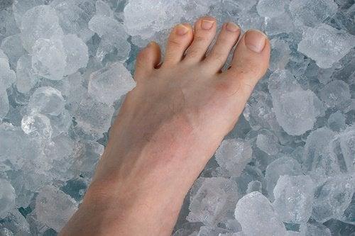 ayak-buz-tedavi