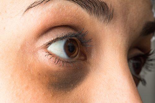 bir kadının göz altı torbaları