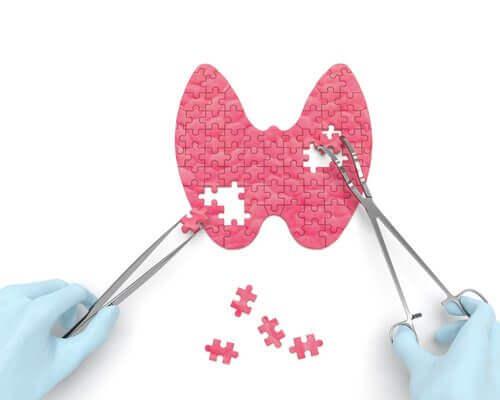 Hipotiroidizm ve 16 İşareti