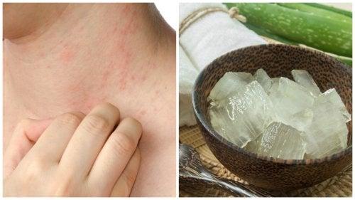 Sıcak Alerjilerini Rahatlatmak İçin 7 Çözüm