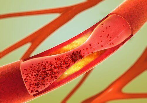 Arterlerinizi Açmak İçin En İyi 12 Yiyecek