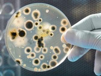 petri kabında bakteri kolonisi