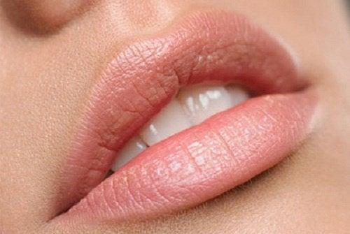 kuru dudaklar