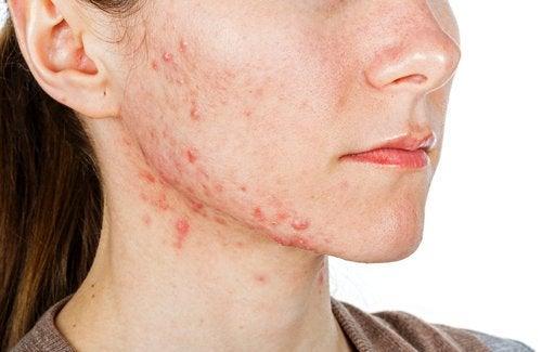 Akne Problemi İçin Uygulayabileceğiniz 6 Oral Tedavi
