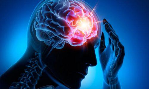 En Yaygın Beyin Damar Hastalıkları