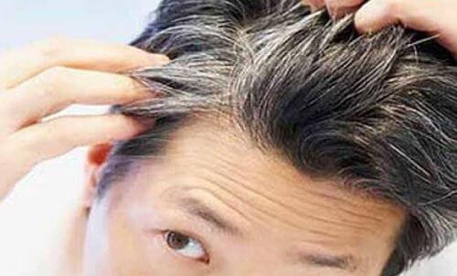 Bu 6 Vitamin ve Yiyecek Sayesinde Saçlarınız Genç Yaşta Beyazlamasın