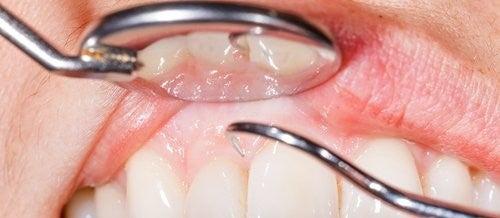 Dişlerinizi Fırçalarken Diş Eti Kanaması İçin 14 Neden
