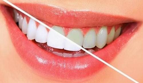 Dişlerinizi Beyazlatan Yiyecekler: Doğal Diş Beyazlatma