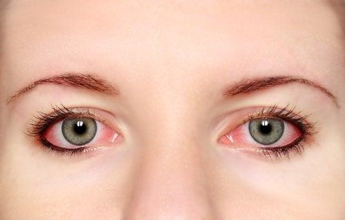 kızaran ve kaşınan gözler