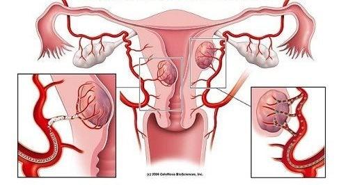 Fibroidler ve Bu Durumu Gösteren 7 Uyarıcı İşaret