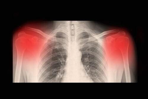 Osteoartrit Hastalığı ile İlgili Bilmeniz Gereken Her Şey