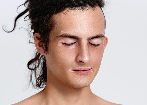 yuzde vitiligo leke
