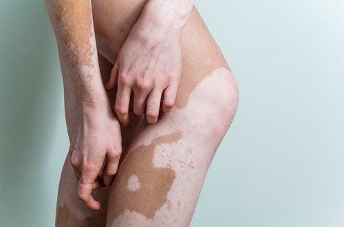 Vitiligo Nedir? Sebepleri ve Tedavileri Hakkında Her Şeyi Öğrenin