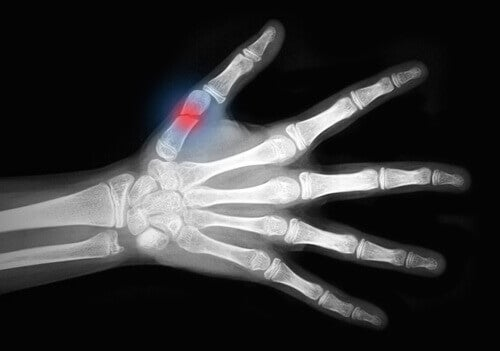 Osteoporoz röntgeni