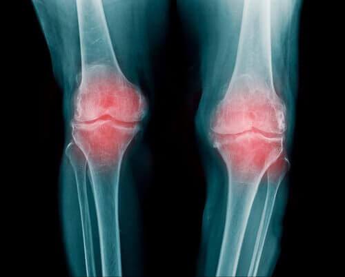 osteoartrit hakkında daha fazlası