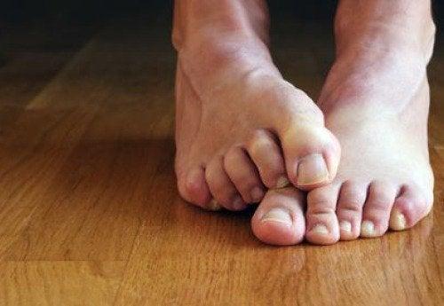 Ayak Mantarı İçin 6 Doğal Reçete