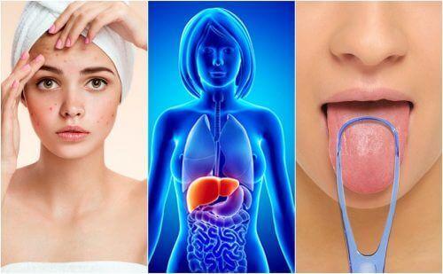 Karaciğer Toksin Birikmesi Sorununa Dair 7 İşaret