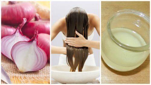 Soğan Bazlı Reçetelerle Saç Dökülmesine Karşı Nasıl Mücadele Edilir