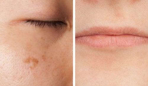 Yüzünüzün Vitamin Eksikliği Hakkında Sizi Uyarmakta Olduğu Beş Durum