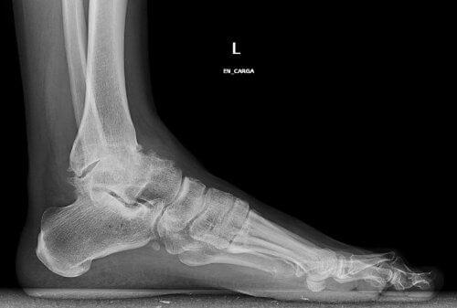 ayak bileği kireçlenmesi