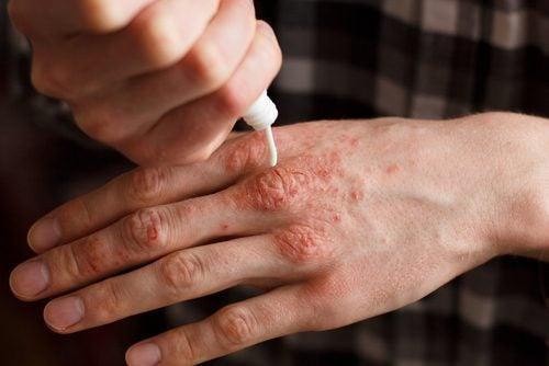 Sedef Hastalığı Tedavisi İçin 6 Doğal Krem