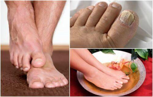 Ayak Mantarı Semptomları: Bu Belirtiler Tanıdık Mı?