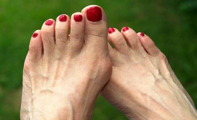 ayaklarda bünyon sorunu