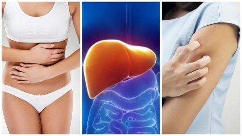 Karaciğerde Toksin Birikmesinin 8 Semptomu