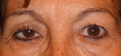düşük göz kapakları
