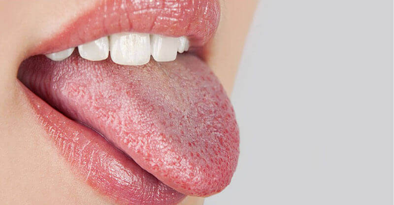 ağız kuruluğu