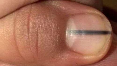 Tırnağınızdaki Bu Siyah Çizgi Kanser Olabilir mi?