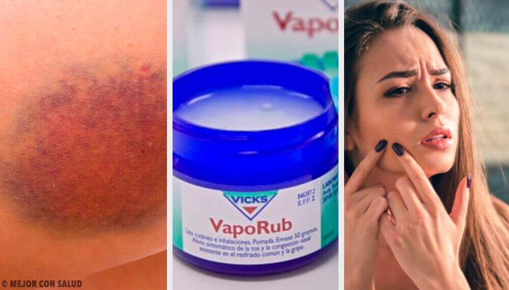 Vicks VapoRub'ın 11 Farklı Kullanımı