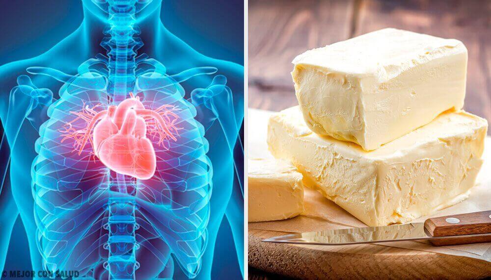 Kalbinize Ciddi Ölçüde Zarar Verebilen 5 Gıda