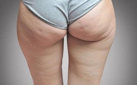 bacakta ve kalçada selülit