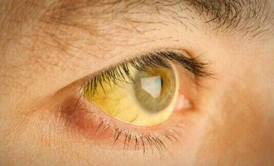 gözlerin sararması