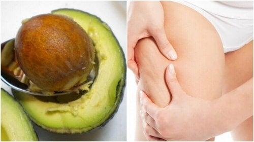 Selülit Tedavisi İçin Avokado Çekirdeklerini Kullanın
