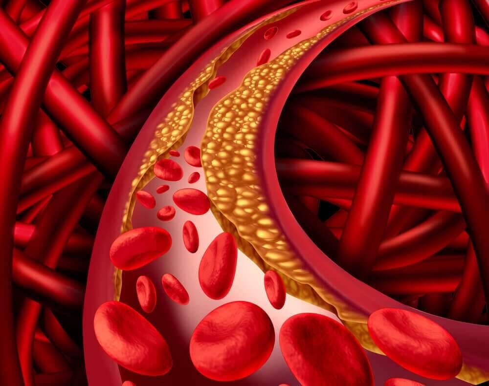hiperkolesterolemi