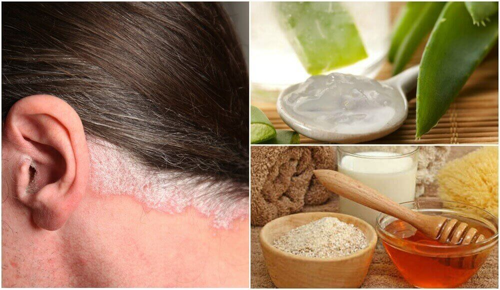 Saç Derisindeki Sedef (Psöriyazis) Hastalığı İçin 5 Ev Tedavisi