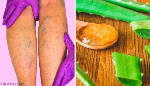 Varisli Damarlar: Bu Aloe Vera Çaresiyle İyileştirin