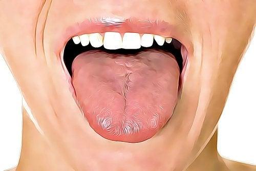 Dil Ülseri Tedavisinde 6 Doğal Yöntem